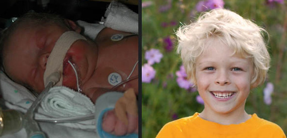 Jude as a baby in the hospital and as a young boy