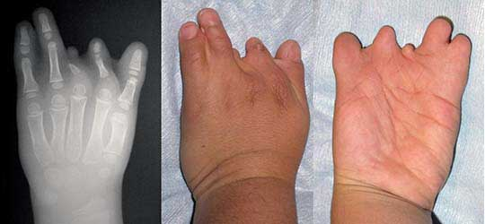 Congenital absence of fingers - remainder of hand intact