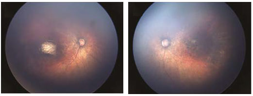 Fundus images of right and left eye: Optic nerve hypoplasia with the double-ring sign, gross pigmentary mottling, and chorioretinal scar in the macular region.