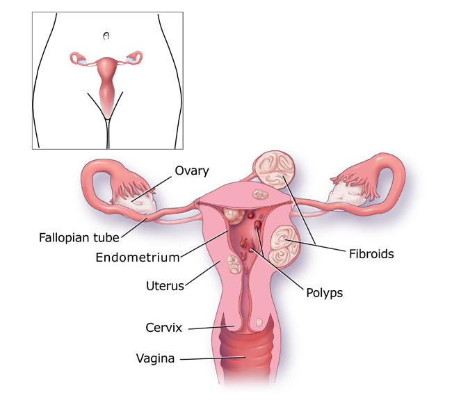 Period Blood Clots Pictures Heavy menstrual bleeding -