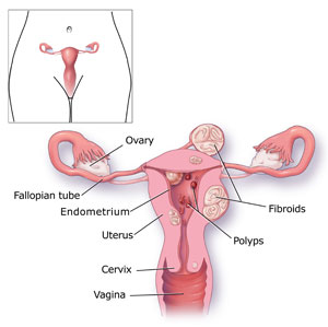 Photo showing a woman's reproductive system.