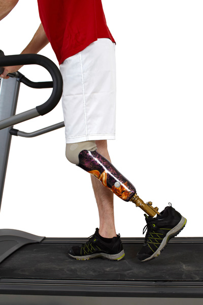 Man with a prosthetic leg walking on a treadmill