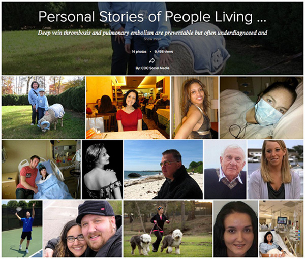 Flikr Album: Personal Stories of People Living with DVT