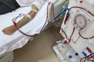 Hemodialysis Machine and Patient