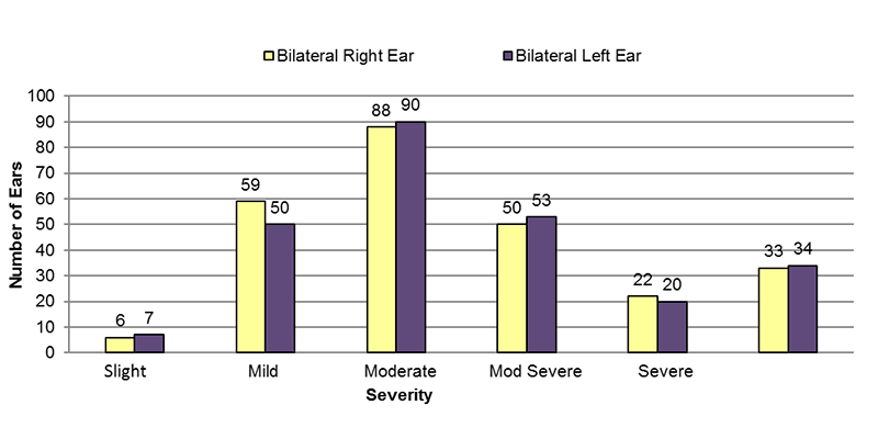 Among bilateral conductive cases, in the right ear, 6 had slight, 59 had mild, 88 had moderate, 50 had moderately severe, 22 had severe and 33 had an unknown severity of hearing loss. In the left ear, 7 had slight, 50 had mild, 90 had moderate, 53 had moderately severe, 20 had severe and 34 had an unknown severity of hearing loss.