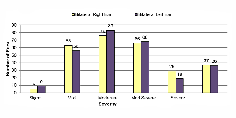 Among bilateral conductive cases, in the right ear, 5 had slight, 63 had mild, 76 had moderate, 66 had moderately severe, 29 had severe and 37 had an unknown severity of hearing loss. In the left ear, 9 had slight, 56 had mild, 83 had moderate, 68 had moderately severe, 19 had severe and 36 had an unknown severity of hearing loss.