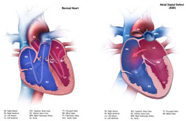 Picture of Atrial Septal Defect and a normal heart