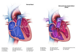 Graphic: Atrioventricular Septal Defect (AVSD) with a normal heart