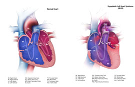 Picture of Hypoplastic Left Heart Syndrome and a normal heart