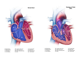 Picture Tetralogy of Fallot