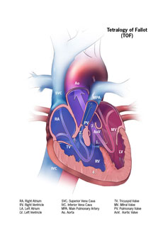 Picture of Tetralogy of Fallot