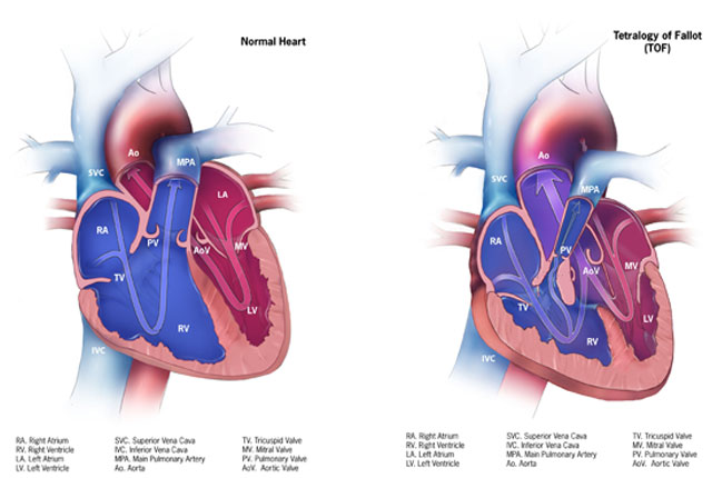 Facts about Tetralogy of Fallot | Congenital Heart Defects | NCBDDD ...