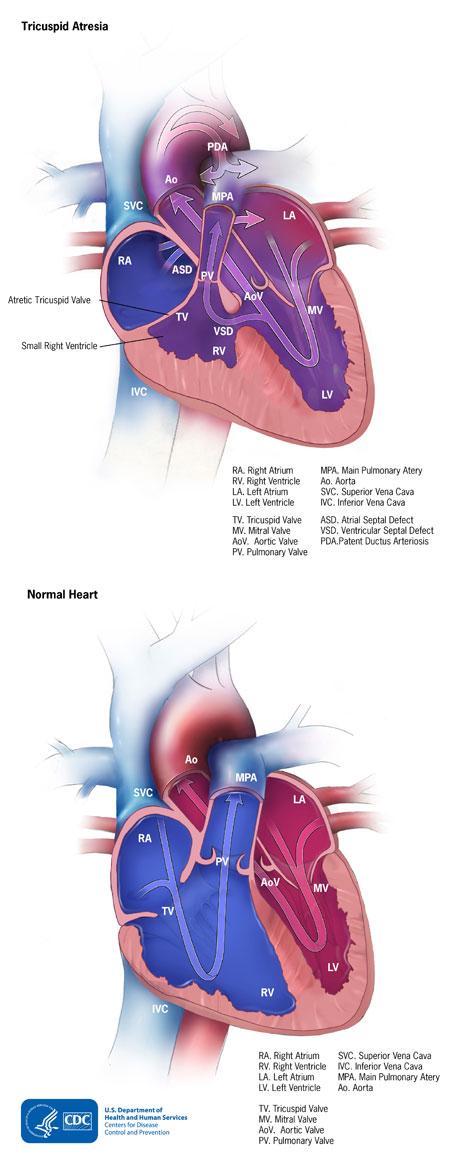Tricuspid Atresia Heart Defects Ncbddd Cdc