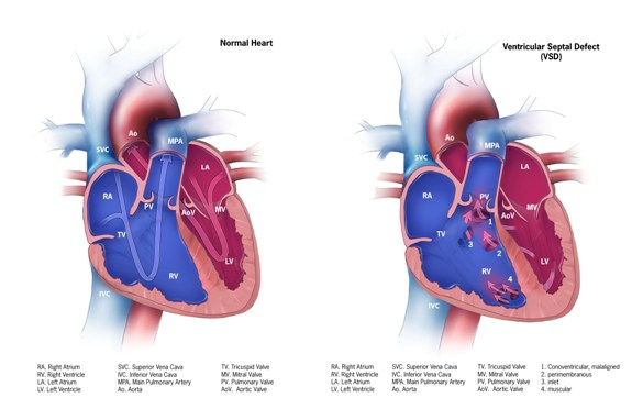 Cdc Congenital Heart Defects Ventricular Septal Defect