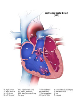 Congenital Heart Defects - Facts about Ventricular Septal