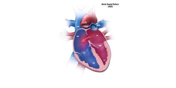 Adult atrial defect septal