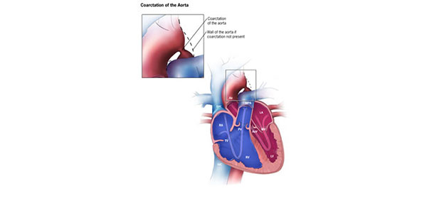 Facts About Coarctation Of The Aorta Congenital Heart Defects