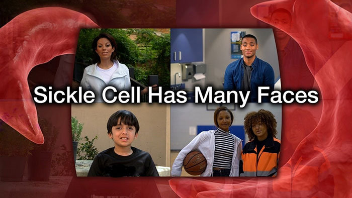 Sickle Cell Has Many Faces video title screen
