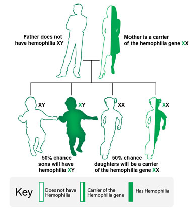 Image showing if the mother is a carrier of the hemophilia gene, and the father does not have hemophilia, there is a 50% chance that each son will have hemophilia, there is a 50% chance that each daughter will be a carrier of the hemophilia gene.
