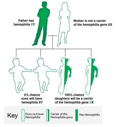 Image: In this example, the father has hemophilia, and the mother does not carry the hemophilia gene. All daughters will carry the hemophilia gene. No sons will have hemophilia.