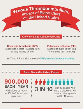 Infographic: VTE - Impact of Blood Clots on the United States