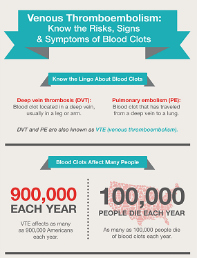 Infographic: VTE - Know the Risks, Signs & Symptoms of Blood Clots