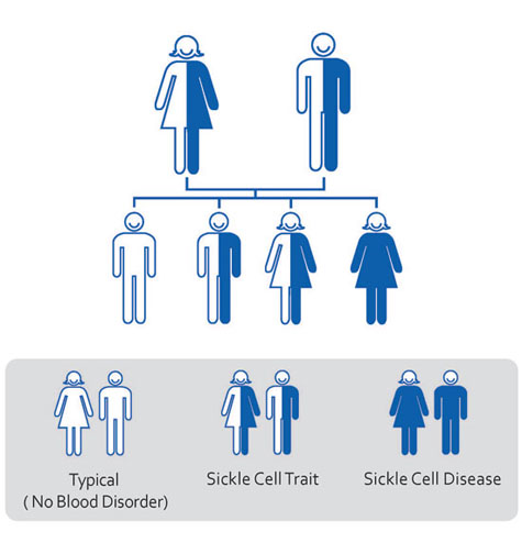 Chart show sickle cell disease interitance
