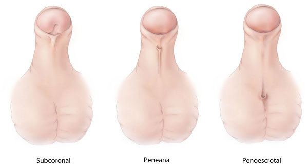 Types of Hypospadias - Subcoronal, Midshaft, and Penoscrotal