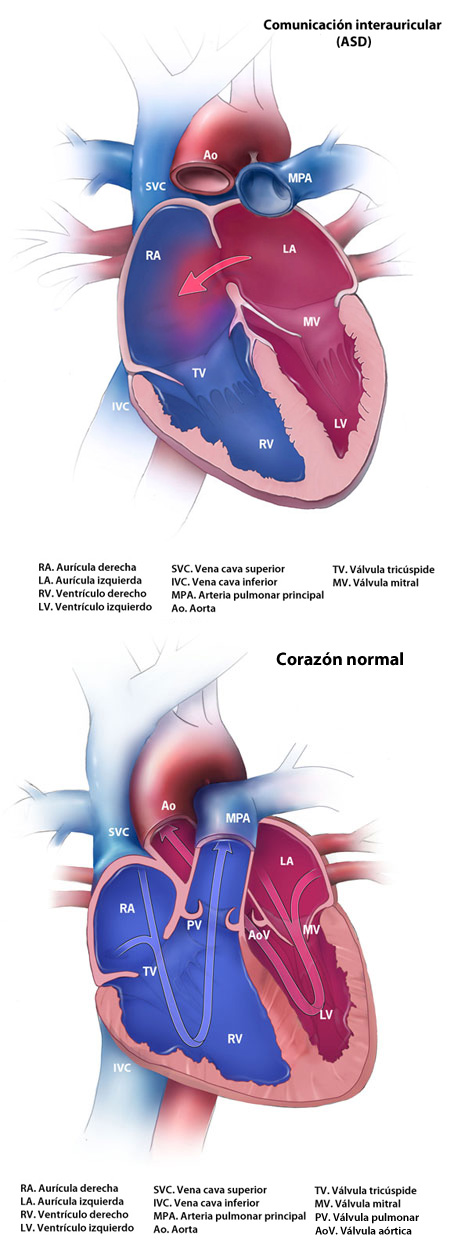 Normal Heart and Atrial Septal Defect