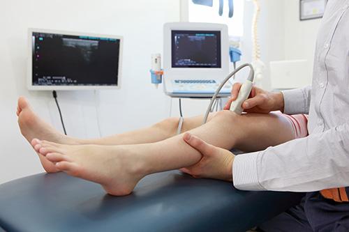 hinchazon de las venas del pie