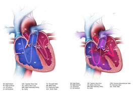 Graphic%3A%20Atrioventricular%20Septal%20Defect%20%28AVSD%29%20with%20a%20normal%20heart