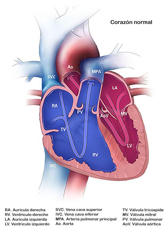 Drenaje venoso pulmonar anómalo total | Defectos cardiacos ...