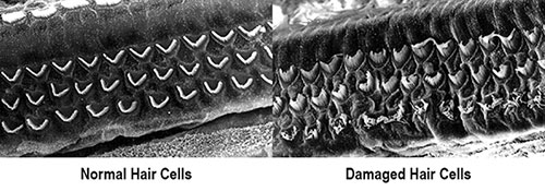 combined normal damaged hair cells labeled