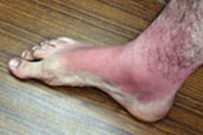 sunburned foot