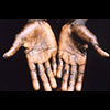 image of patient with monkeypox on hands