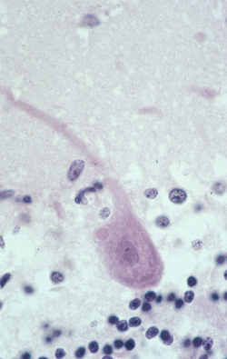 Photomicrograph of a hematoxylin and eosin stain of brain tissue from a patient infected with rabies virus.
