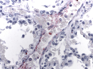 Photomicrograph of an immunohistochemical stain of tissue infected with Rickettsia rickettsii