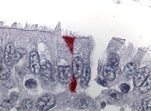 Photomicrograph of an immunohistochemical stain of respiratory tissue infected with SARS coronavirus.