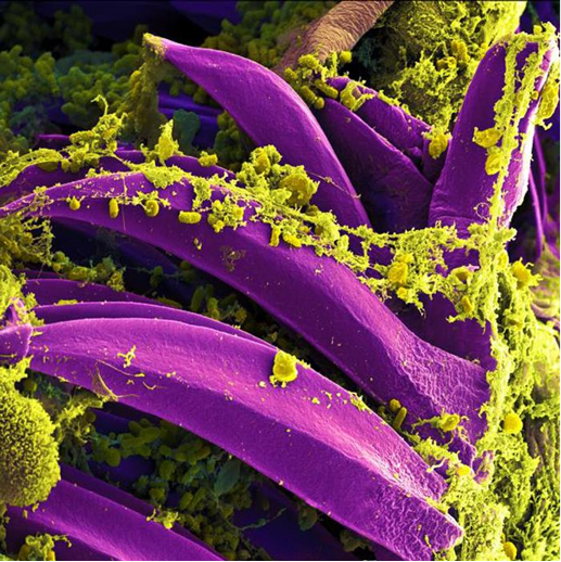 Yersinia pestis bacteria up close