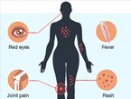 thumbnail of graphic showing symptoms of zika