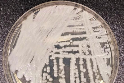 Petri dish with cultured candida auris