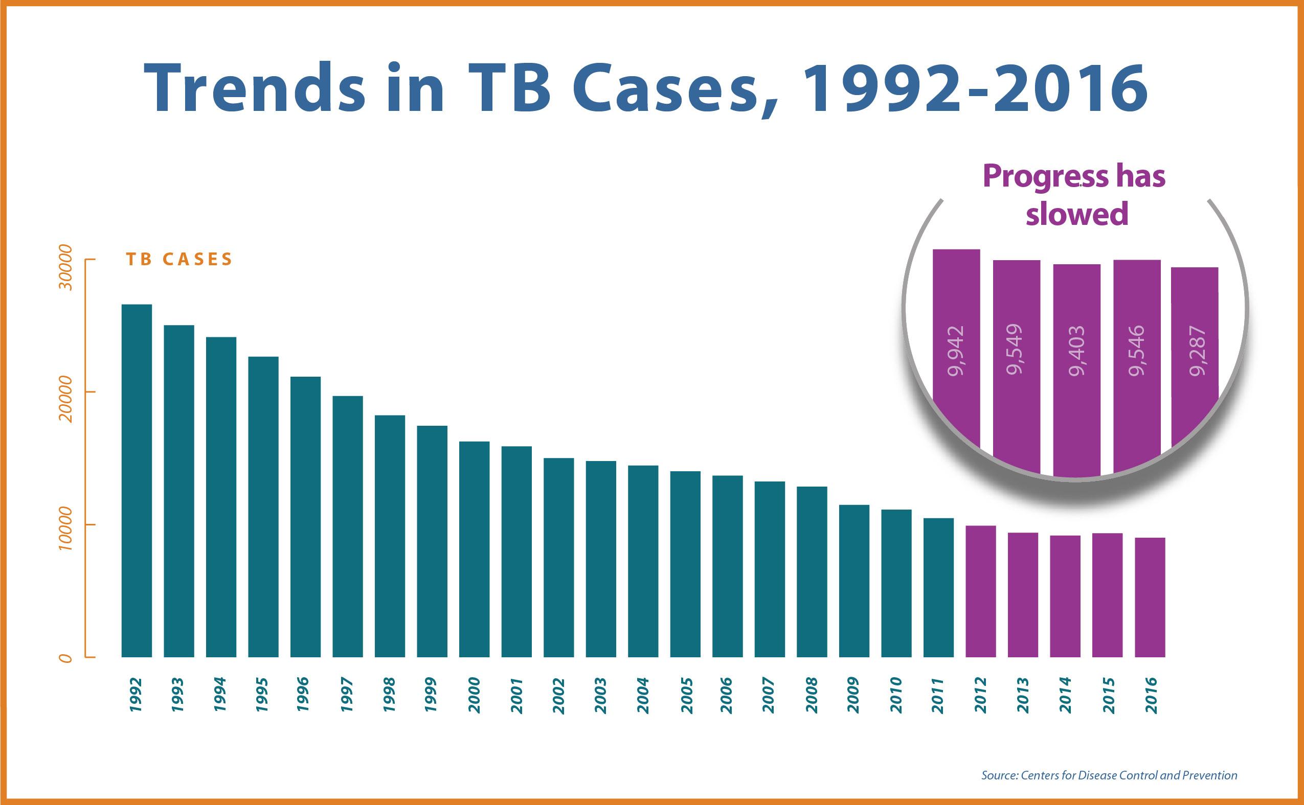 global tb diagram