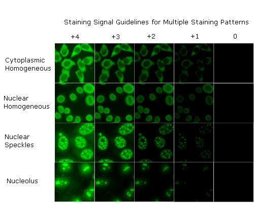 ANA staining intensity reference gallery Staining Signal Guidelines for Multiple Staining Patterns