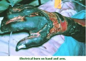 electrical burn on hand and arm