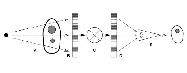 Figure 1. The examination of patients with digital radiography is illustrated as a six component model; A) generation of a beam of x-rays incident on the patient, B) modulation of the x-ray beam intensity by tissue structures, C) detection of the transmitted x-ray beam and creation of an array of raw image values ( Iraw ), D) transformation of Iraw values to presentation values ( Ip ) by display processing, E) display of the image with a standardized grayscale, and F) psycho-visual interpretation of the displayed image by the observer.