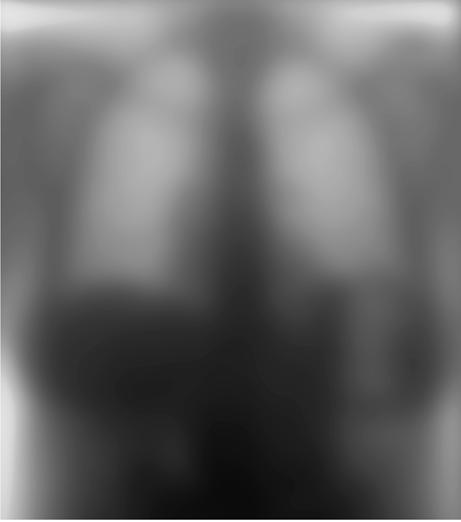 Figure 4b. An unsharp mask image derived from the chest image in figure 4a is illustrated with the grayscale reversed.
