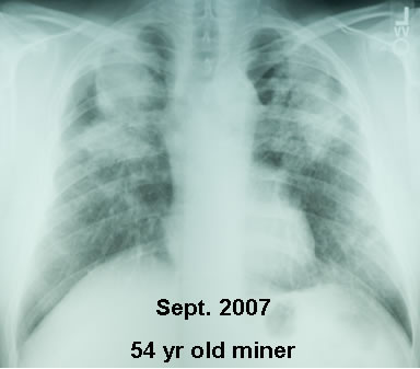 An x-ray of pneumoconiosis.