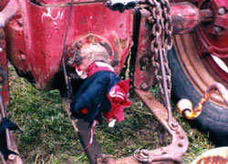 Figure 1. Clothing entangled on bolt on PTO tractor stub shaft