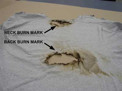 neck and back burn marks on T-shirt