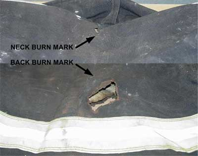neck and back burn marks on bunker jacket
